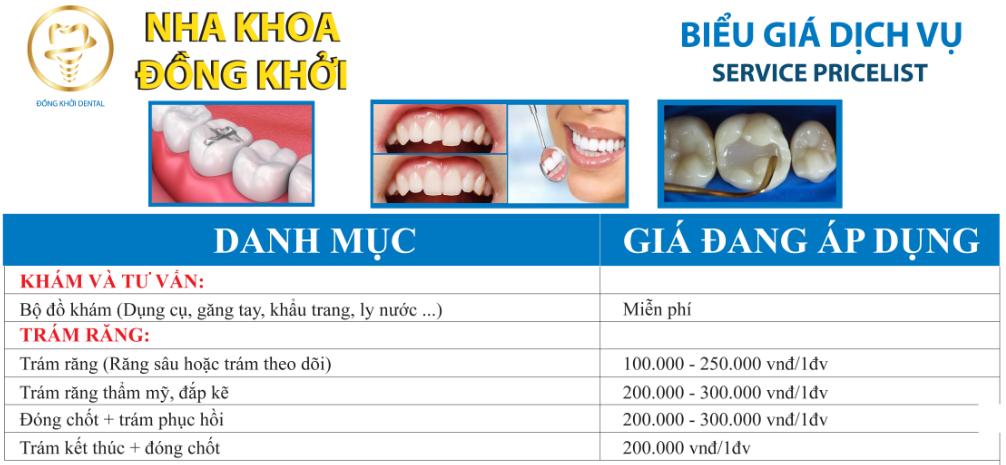 bảng giá trám răng thẩm mỹ